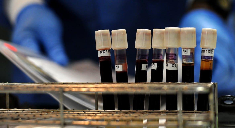 В Украинской Церкви призвали верующих стать донорами, а переболевших коронавирусом – сдать плазму
